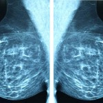 Canadian Task Force Reform Empowering Mammography Guidelines