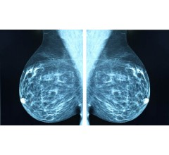 Image for Canadian Task Force Reform Empowering Mammography Guidelines