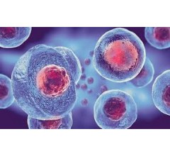 Image for FDA Issues Warning Over Risks Associated with Stem Cell Treatments After A Dozen Patients Contract Bacterial Infections
