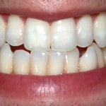 Dental Whitening Strips May Be Damaging Your Teeth