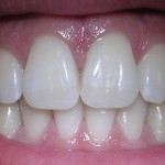 Scientists Develop New Gel To Regrow Tooth Enamel
