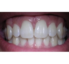 Image for Scientists Develop New Gel To Regrow Tooth Enamel