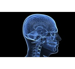 Image for Smartphone Use Linked To Chemical Imbalance In Brain