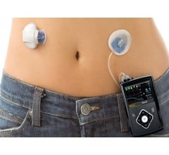 Image for FDA Approves New Insulin Pump
