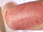 Johnson & Johnson Drug Tops Humira in Psoriasis Study
