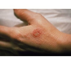 Image for FDA Gives Approval to New Powerful Eczema Drug