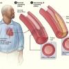 FDA Approves Heart Pump