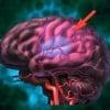 Distress Can Increase Stroke Risk
