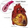 Calcium Supplements Might Increase Heart Disease Risk