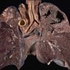 Drug Resistant TB Bacteria Killed by Vitamin C