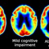 Brains Clean Themselves during Sleep