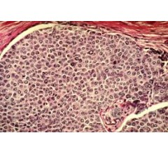 Image for Breast Cancer Spread Triggered by Low Levels of Oxygen