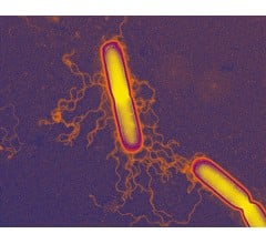 Image for CDC Investigating Link of Deadly Bacteria to Doctor's Offices