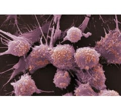 Image for Chemo with Suicide Gene Therapy Kills Cancer Cells in Prostate